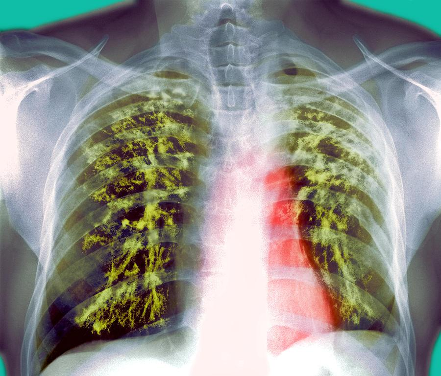lung-scarring-from-tuberculosis-x-ray-du-cane-medical-imaging-ltd