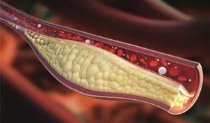 cholesterol-lowering-foods