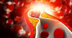 Cholesterol - Why You Can't Live Without It