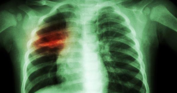 Tuberculosis Testing and Treatment